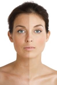 skincare, aging, wrinkles, sun damage, sun spots