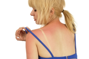how to prevent sunburn, beauty products that cause sunburn, sun protection