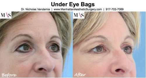 Treatment of under eye bags by New York Plastic Surgeon Dr Nicholas Vendemia of MAS | 917-703-7069