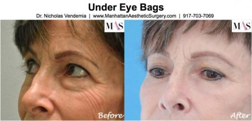 Treatment of under eye dark circles by New York Plastic Surgeon Dr Nicholas Vendemia of MAS | 917-703-7069