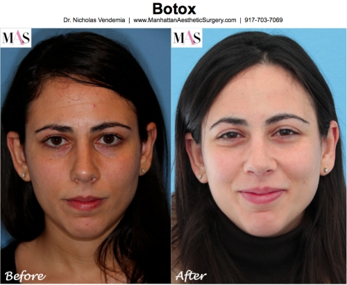 Botox New York City with Dr Nicholas Vendemia, MAS, Manhattan Aesthetic Surgery, Botox Before and After, Preventative Botox Therapy