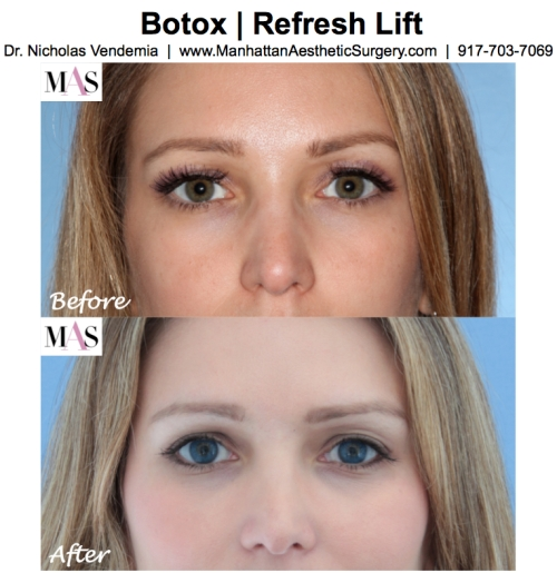 Botox by New York Plastic Surgeon Dr. Nicholas Vendemia of MAS | 917-703-7069
