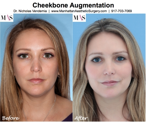 Before and After Sculptra for Cheekbones by New York Plastic Surgeon Dr. Nicholas Vendemia of MAS, Juvederm, Restylane, Radiesse, Fillers for cheekbones, Fillers for under eyes, Manhattan Aesthetic Surgery, Plastic Surgery