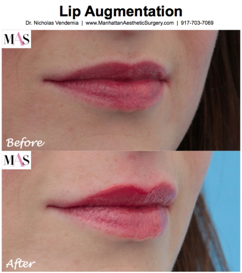 Lip augmentation by New York plastic surgeon Dr. Nicholas Vendemia of MAS | 917-703-7069