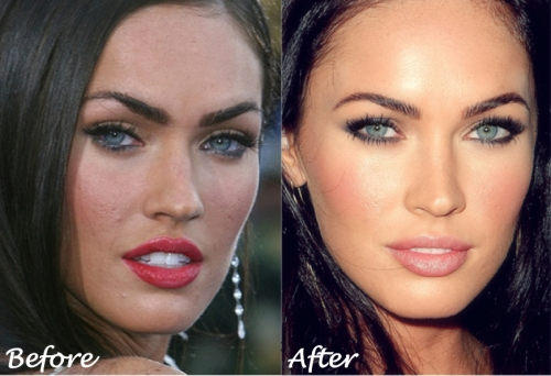 megan fox plastic surgery, megan fox skin care, megan fox botox