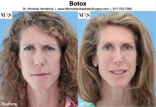 Botox by New York Plastic Surgeon Dr Nicholas Vendemia of MAS | 917-703-7069