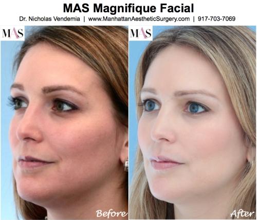 Hyperpigmentation treatments, sun spots, acne, melasma, MAS Magnifique Facial