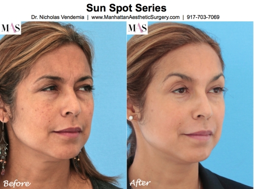 IPL by Plastic Surgeon NYC Dr Nicholas Vendemia of MAS Manhattan Aesthetic Surgery